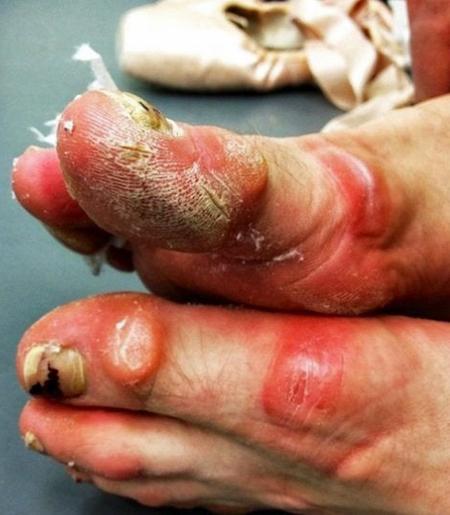 Close-up of a ballerina's injured feet
